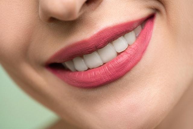 Ortodonzia intercettiva: cos'è e perché è importante